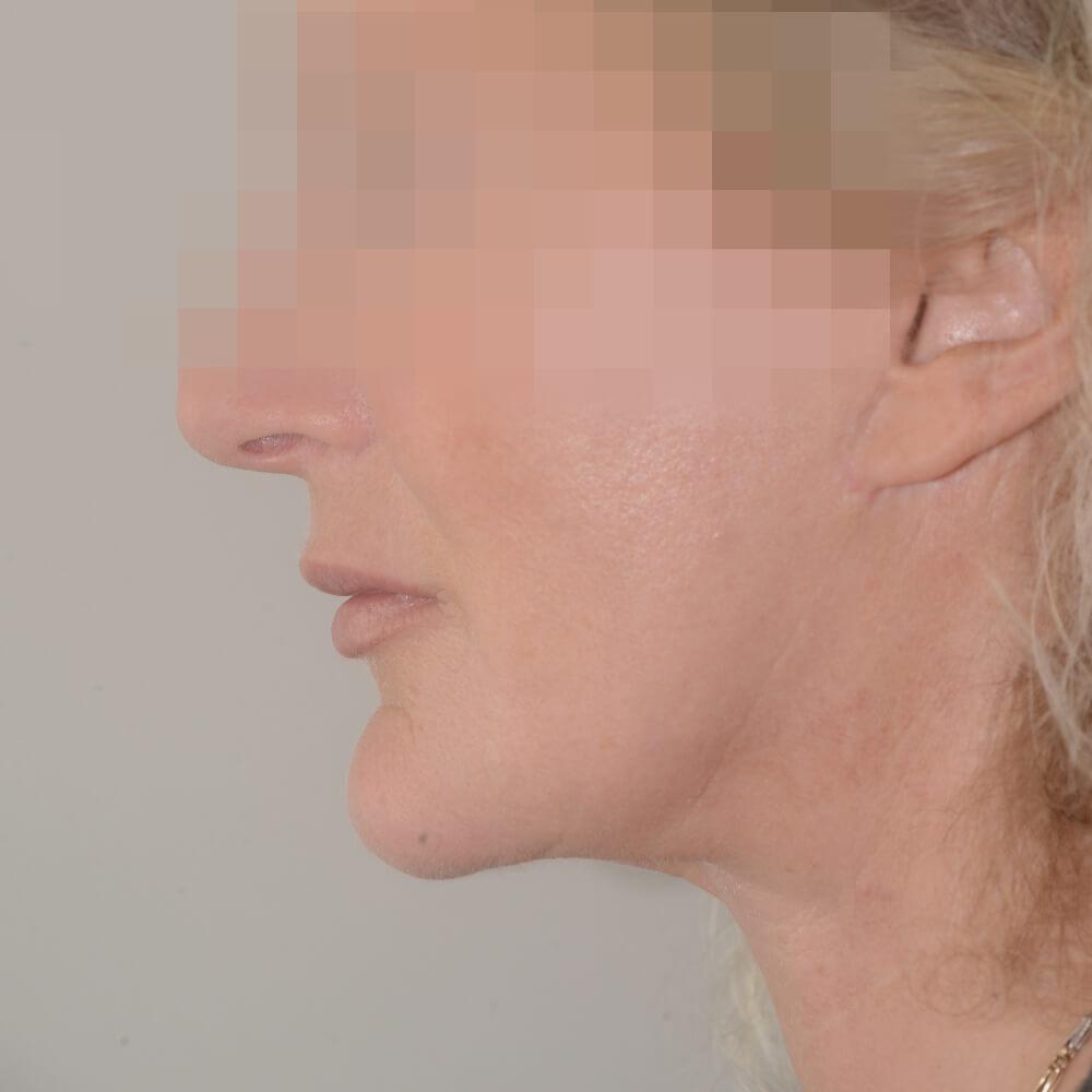 Chirurgie penis vorher nachher erweiterung