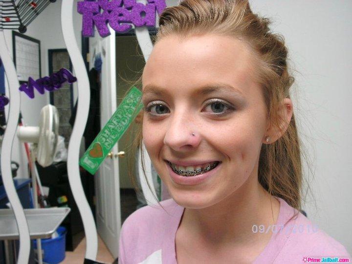 Girls braces teen facial junge