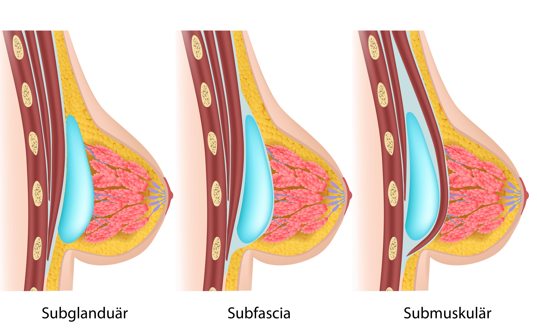Artikel brust implantat beispiele empfohlene