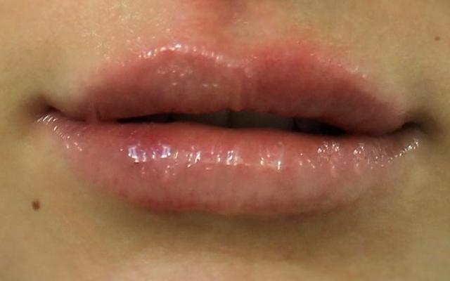 Pussy lippen botox in der