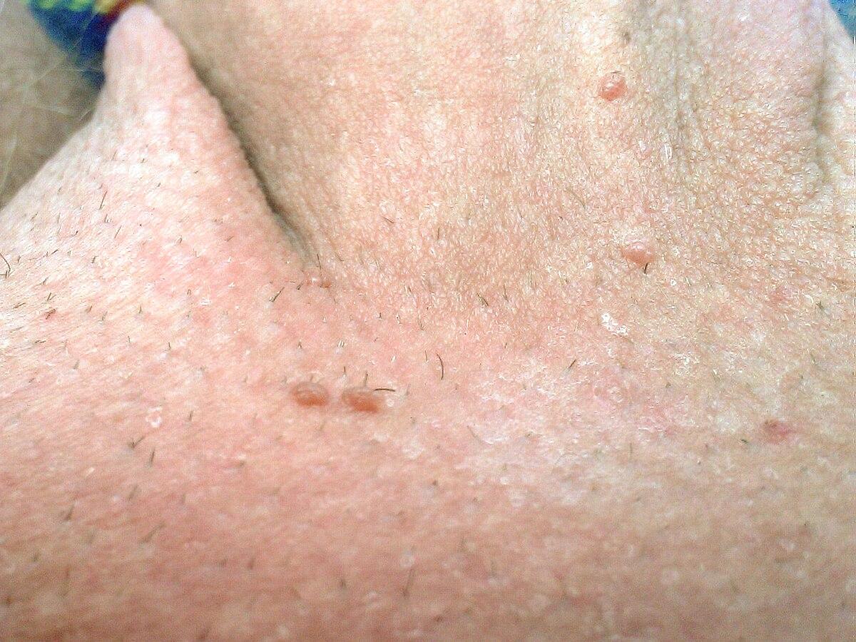 Der bild vulva der schamlippen und
