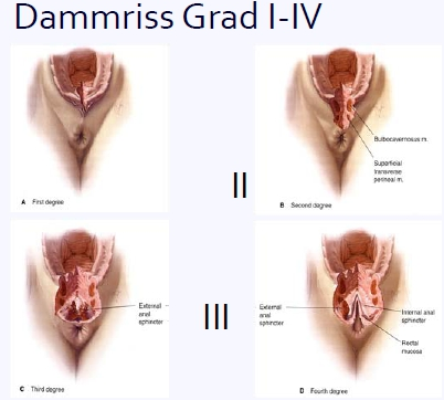 Wahrend schwangerschaft der abszess klitoris