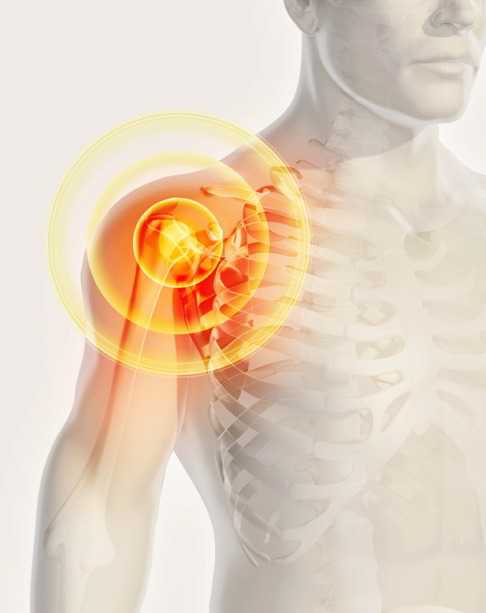 Der schulter zyste schmerzen in schlimmer brust