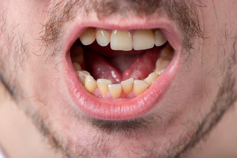 Den ein mund in schwanz