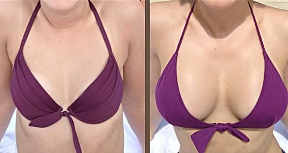 Bilder nach vor und brustvergroerung