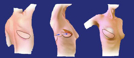 Brustkrebs und brust in schmerzen der